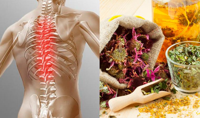 Растительная терапия остеохондроза
