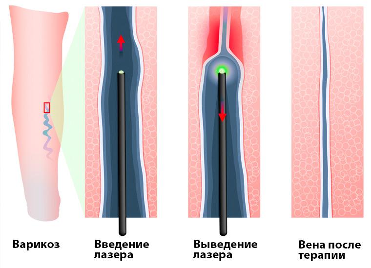 Лазерная терапия вен
