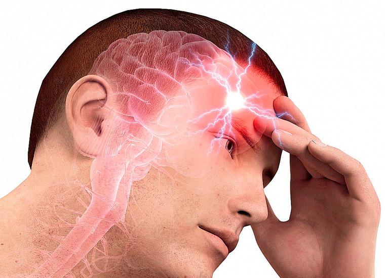 Аневризмы сосудов в головном мозге