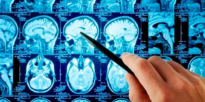 Что лечит нейрохирург