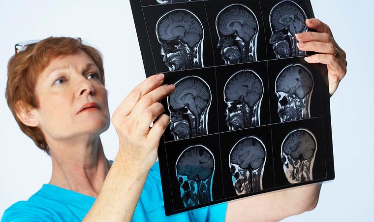 Диагностика головной боли
