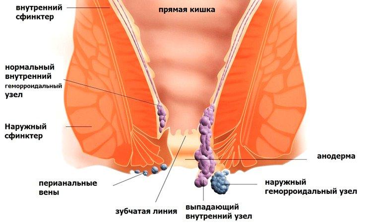 Симптомы геморроя