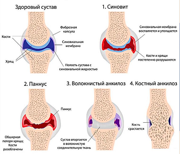 Стадии артрита