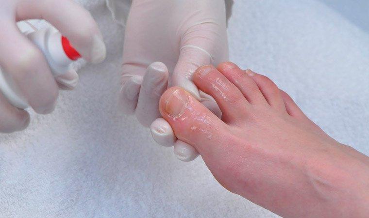 Методы лечения миколога