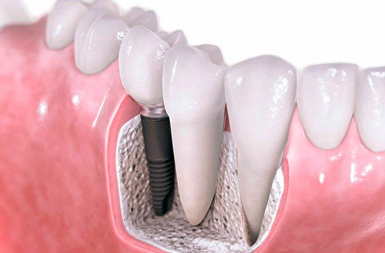 Методы лечения стоматолога