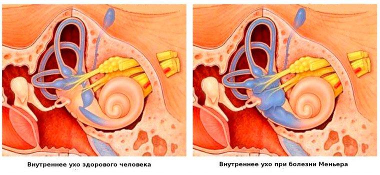 Внутреннее ухо при болезни Мейнера