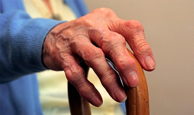 Посттравматичекий артрит