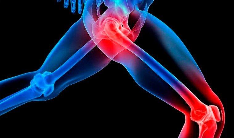 Как называется врач который лечит суставы