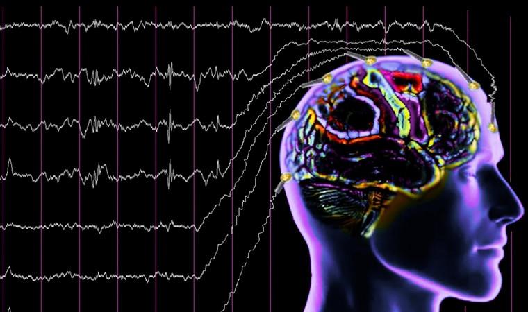 Электроэнцефалограмма-головного-мозга