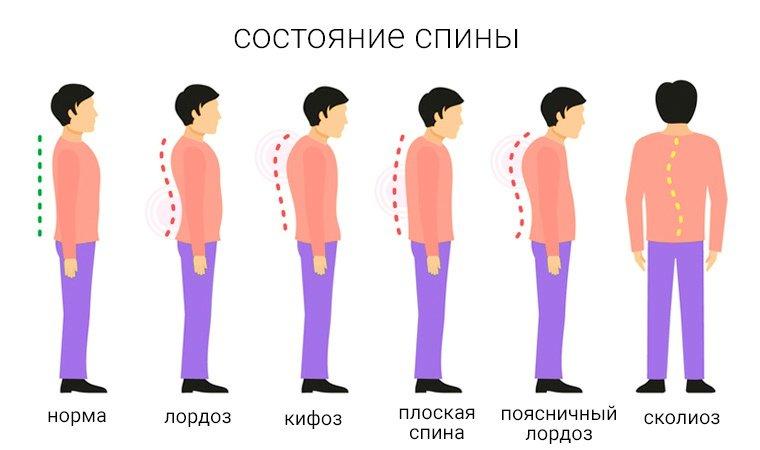 Патологии-спины